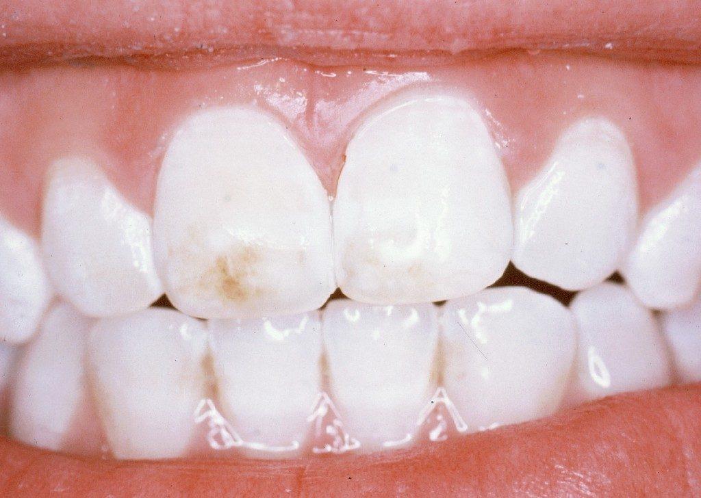 Diş Lekesi Nasıl Giderilir